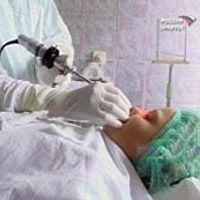 хирургическое удаление жира на животе у мужчин
